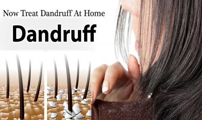 Home-remedies-for-Dandruff