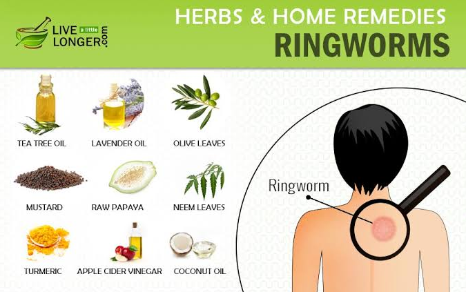 Natural home remedies for ringworm